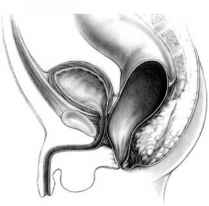 Anteriorly Placed Rectum
