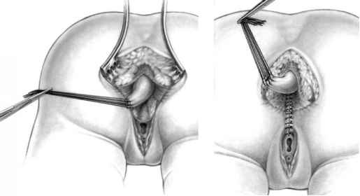 rectum-penetration-perineal-repair-dyna-jet-redhead