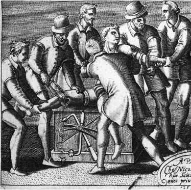 Surgical Amputation 1750