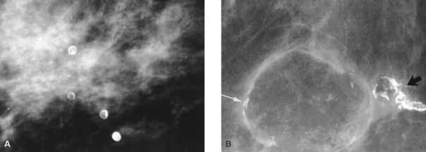 Rim Calcification Breast