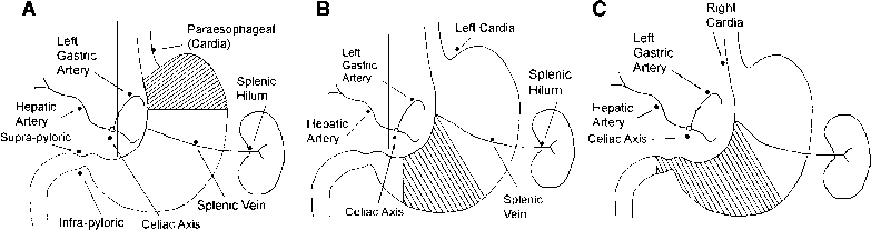 Left Gastric Lymph Node