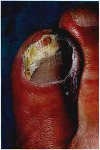 Partial Nail Avulsion Worst Case