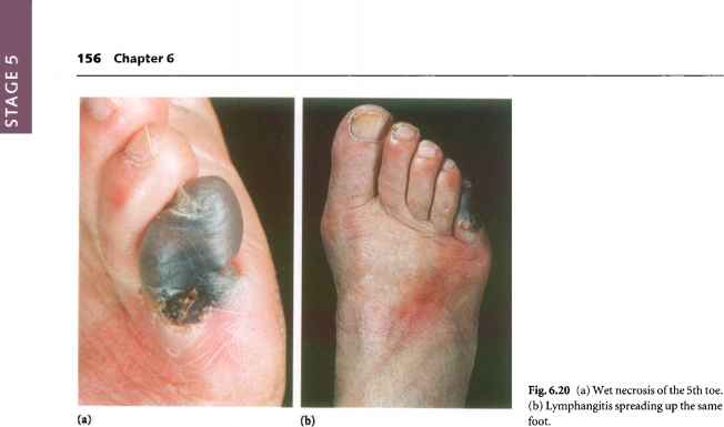 Diabetic Heel Ulcers Pictures