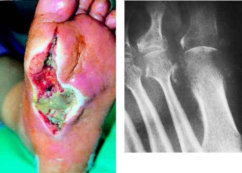 Diabetic Foot Cellulitis