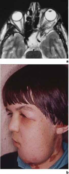 Aetiologies - Gene Therapy - RR School Of Nursing | 272 x 683 jpeg 14kB