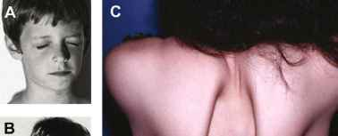 Scapuloperoneal Muscular Dystrophy