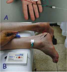 Sural Nerve Conduction Study