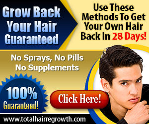 How To Treat Hair Loss Naturally