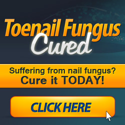 Treating Fungal Toenails Permanently