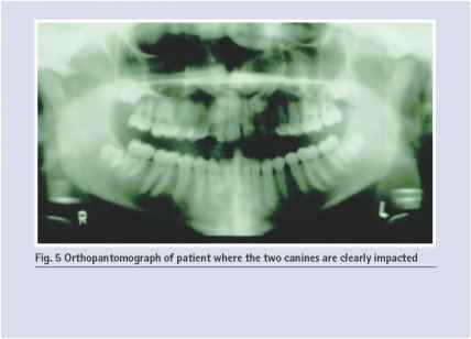 Dental Pantomogram