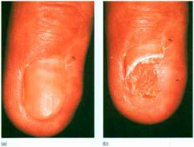 Bowen Disease The Nail Bed