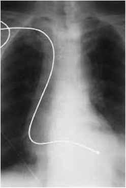 Temporary Pacing Wire Xray Placement