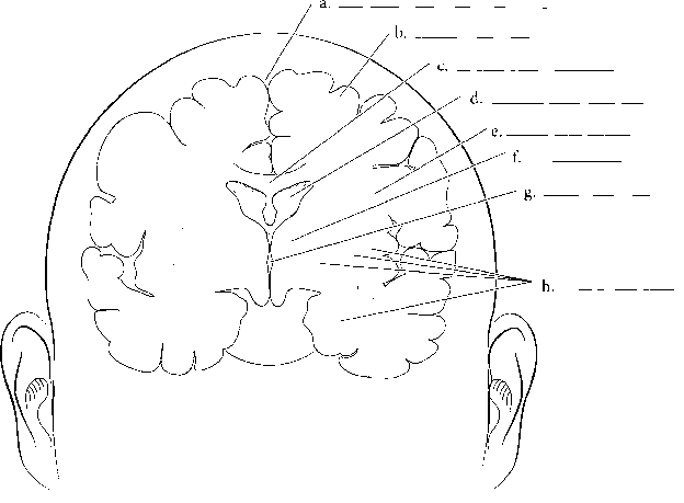 Pituitary Lateral Ventricle