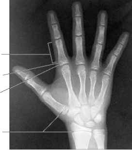 Epiphyseal Plate Hand
