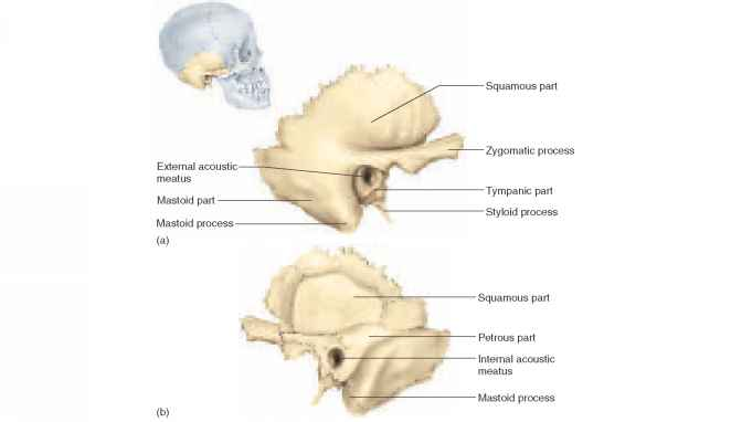 Right Temporal Bone Medial View