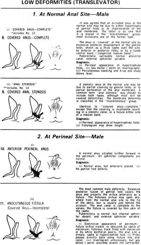 Anorectal Malformation Classification