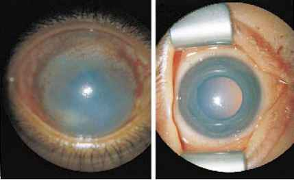 End Stage Glaucoma