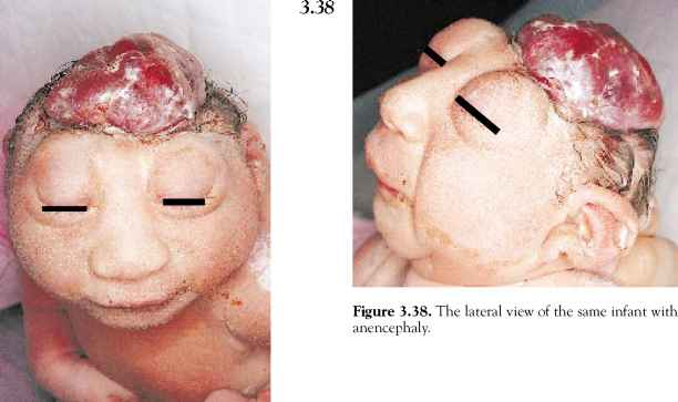 Anencephaly Treatment