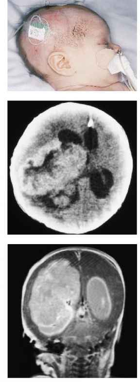 Brain Tumor Infant