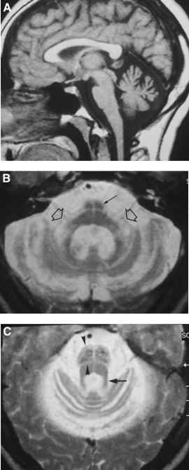 Multiple Systems Atrophy Cerebellar