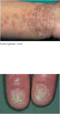 Lichen planus - Lupus Erythematosus - RR School Of Nursing