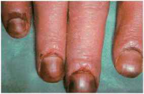 Peripheral Bullous Lesion Child