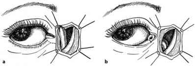 Syringing Lacrimal Ducts