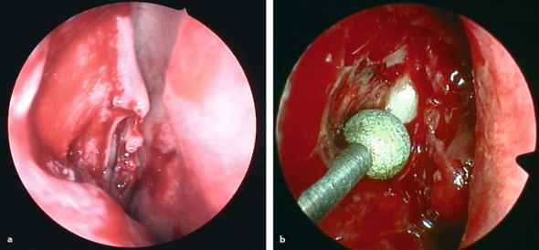 Ear Drum Has Yellow Discharge