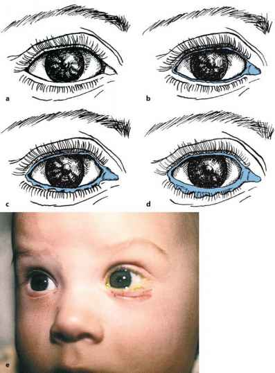 Eye Nosalcrimal Duct Labeling
