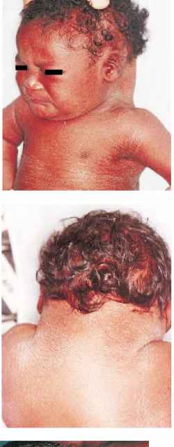 Robinow Syndrome Type Newborns Rr School Of Nursing