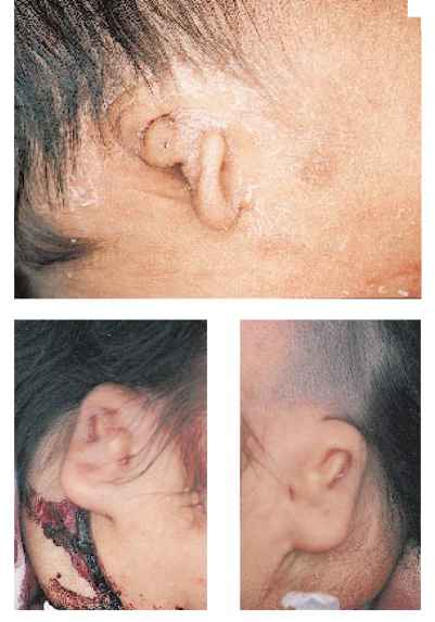 Ear Skin Tags Infants