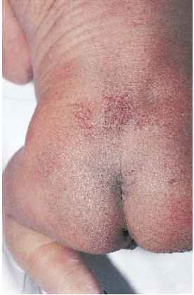 Infant Hairy Patch on the Back Birth Injury Guide