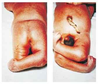 Caudal Regression Syndrome Newborns Rr School Of Nursing