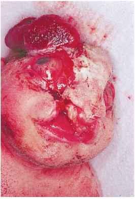 Transverse Facial Cleft Newborns Rr School Of Nursing