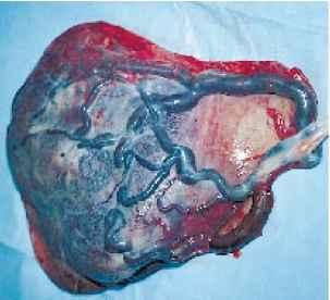 Ragged Membranes Placenta