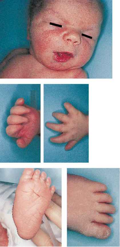 Effects of Maternal Medication - Newborns - RR School Of Nursing