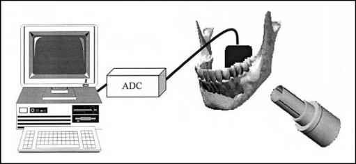 Diagram Direct Radiographic System