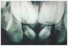 Tuberculate Type Supernumerary Tooth