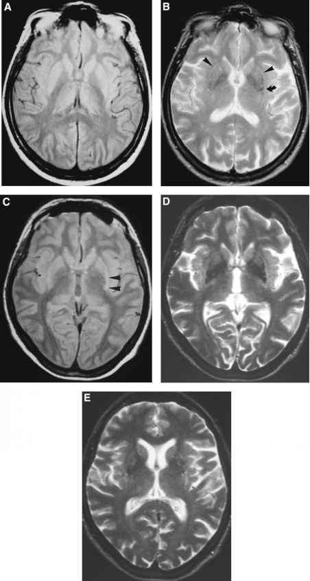 Mri Multiple Systems Atrophy