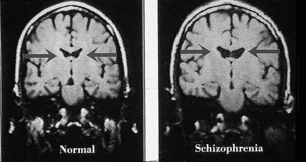 Lateral Ventricles Schizophrenia