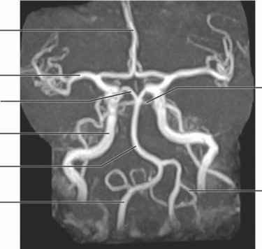 Cerebral Angiogram Labeled