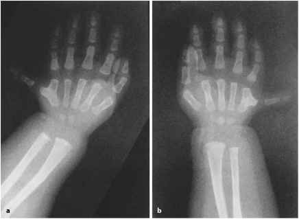 Greig Cephalo Polydactyly Syndrome