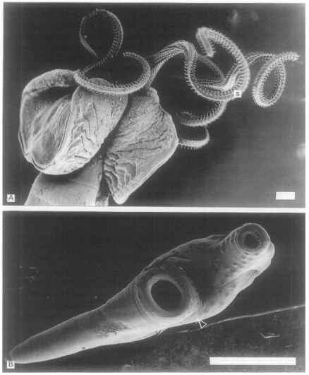 Larval Trypanorhyncha