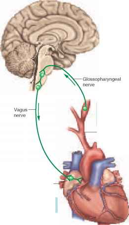Baroreceptors sense increased blood pressure