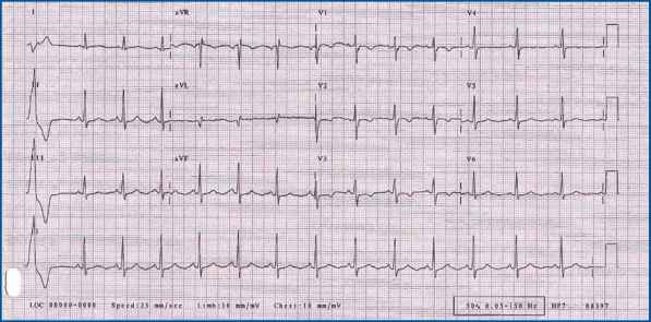 Left Ventricular Ectopic Beats